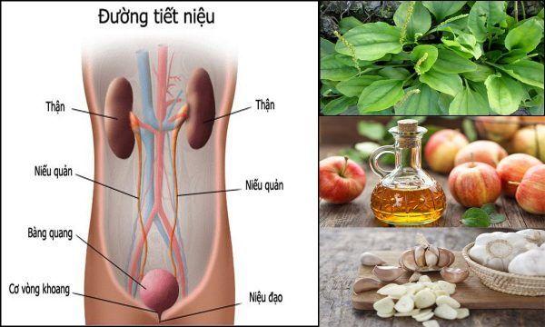 5 cách chữa viêm đường tiết niệu đơn giản tại nhà