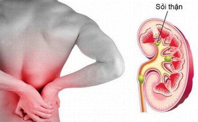Sỏi thận : Nguyên nhân, triệu chứng, cách phòng ngừa và chữa trị hiệu quả